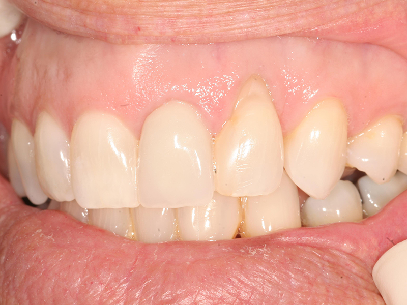 Gum Treatment Before And After Photos Jupiter Palm Beach